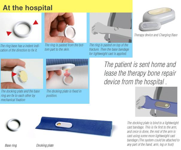 bone_repair5