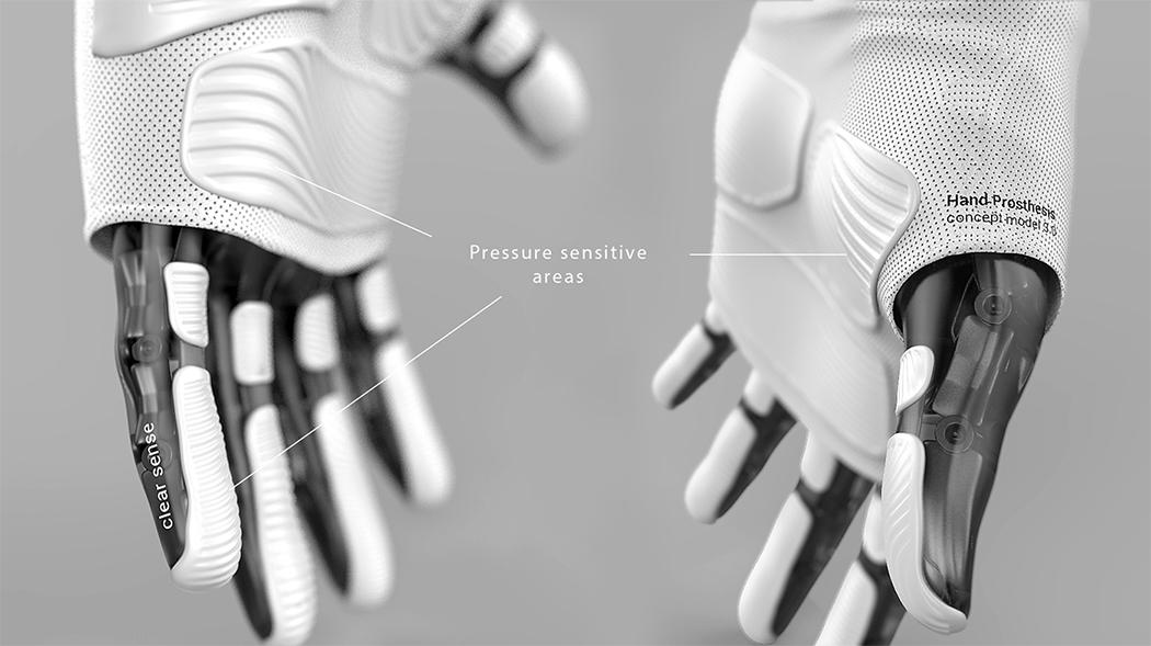 motus_hand_prosthesis_2