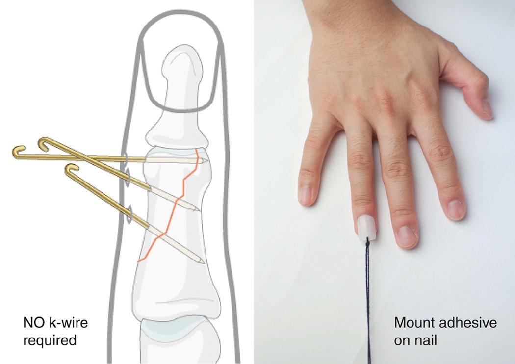 bend_finger_cast_6